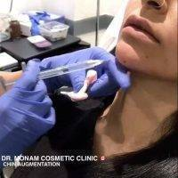 Botox Chin Augmentation