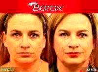 Botox Face Injections Before And After