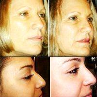 Botox Facelift Before And After Pictures (1)