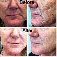 Botox Facelift Before And After Pictures (2)