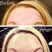 Botox Facelift Before And After Pictures (3)