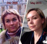 Botox Facelift Before And After Pictures (4)