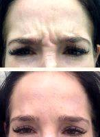 Botox Facelift Before And After Pictures (5)