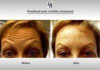 Botox Facelift Before And After Pictures (6)