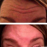 Botox Facelift Before And After Pictures (7)