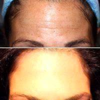 Botox Facelift Before And After Pictures (8)