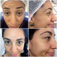 Botox Facelift Is A Skin Tightening Procedure Using Botox
