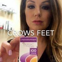 Botox For Crows Feet Photo