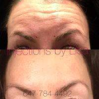Botox For Forehead Cost