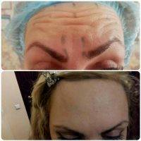 Botox Forehead Before And After Pics
