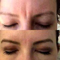Botox Frown Lines Before And After Photos (1)
