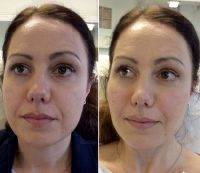 Botox Injections For Face