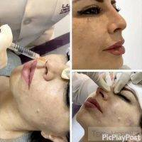 Botox Is Injected Intradermally