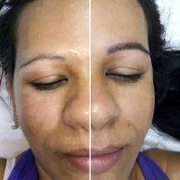 Botulinum Toxin For Face Before And After