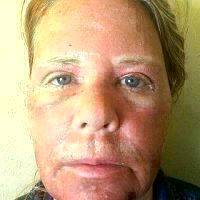 Carbon Dioxide Laser Resurfacing Before After Photos