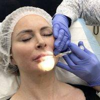 Dermal Filler Juvederm