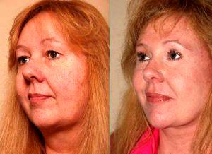 Doctor Christian G. Drehsen, MD, Tampa Plastic Surgeon - And After