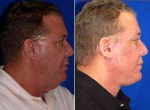 Doctor Eric Egozi, MD, Tampa Plastic Surgeon - Facelift