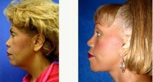 Doctor J. Timothy Katzen, MD, FACS, Los Angeles Plastic Surgeon - Facelift (side View L)