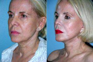 Doctor Jose Perez-Gurri, MD, FACS, Miami Plastic Surgeon - Facelift Before & After