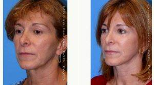 Doctor Onelio Garcia Jr, MD, FACS, Miami Plastic Surgeon - 42 Year Old Woman Treated With Facelift