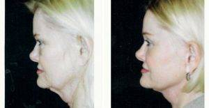 Doctor Robert H. Hunsaker, MD, Miami Plastic Surgeon - 49 Year Old Woman Treated With Facelift
