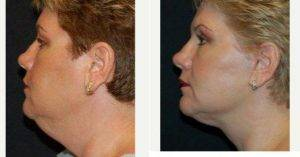 Doctor Thomas Fiala, MD, Orlando Plastic Surgeon - Facelift
