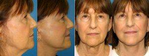 Doctor William LoVerme, MD, Boston Plastic Surgeon - Facelift And Necklift