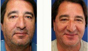 Doctor Zoran Potparic, MD, Fort Lauderdale Plastic Surgeon - 52 Year Old Man Treated With Facelift