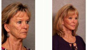 Dr Christian G. Drehsen, MD, Tampa Plastic Surgeon - Refresher Lift 61 Year Old Woman