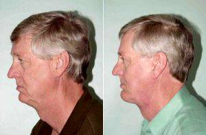Dr Daniel H. Kane, MD, Miami Plastic Surgeon - Facelift