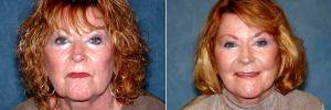 Dr Francis (Frank) William Rieger, MD, Tampa Plastic Surgeon - Facelift