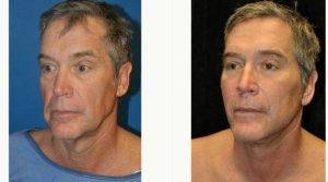 Dr Gary Motykie, MD, Los Angeles Plastic Surgeon - 60 Year Old Man Treated With Facelift