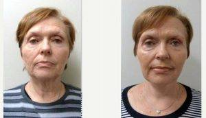 Dr Jeffrey H. Spiegel, MD, Boston Facial Plastic Surgeon - 60 Year Old Woman Treated With Facelift