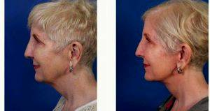 Dr John M. Hilinski, MD, San Diego Facial Plastic Surgeon - Lower Facelift And Upper Neck Lift Surgery