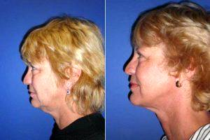 Dr John Sampson, MD, Miami Plastic Surgeon - Facelift