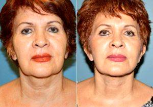Dr Jose Perez-Gurri, MD, FACS, Miami Plastic Surgeon - Facelift