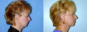 Dr Lewis Ladocsi, MD, FACS, Richmond Plastic Surgeon - 55 Year Old Woman Who Was Unhappy With Her Appearance