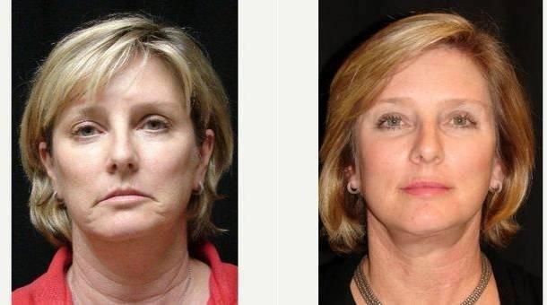 Dr Michael J Denk Md Virginia Beach Plastic Surgeon Facelift