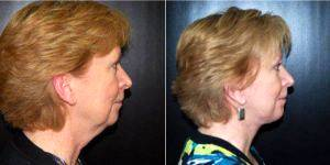 Dr Pedro M. Soler, Jr., MD, Tampa Plastic Surgeon - 63 Year Old Woman Treated With Facelift
