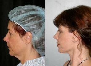 Dr Randal Haworth, MD, FACS, Los Angeles Plastic Surgeon - Facelift