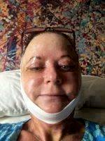Dr Ross Horton S Facelift Photos Result
