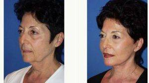 Dr Sam Gershenbaum, DO, Miami Plastic Surgeon - 64 Year Old Woman Treated With Facelift