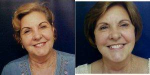 Dr Stephanie A. Stover, MD, Miami Plastic Surgeon - 60 Year Old Woman Treated With Facelift