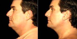 Dr Thomas M. DeWire Sr., MD , Richmond Plastic Surgeon - Male SMAS Facelift In A 40-year-old