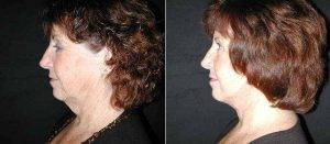 Dr. Randy B. Miller, MD, Miami Plastic Surgeon - Female Face Lift