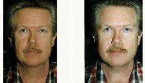 Dr. Robert H. Hunsaker, MD, Miami Plastic Surgeon - 59 Year Old Man Treated With Facelift Before & After