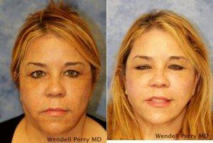 Dr. Wendell Perry, MD, Miami Plastic Surgeon - 48 Year Old Woman Treated With Facelift