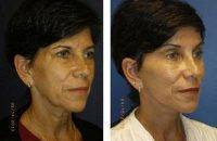 Face Plastic Surgery Before And After