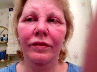 Face Plastic Surgery Photos